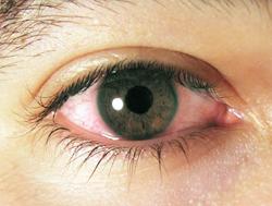 붉게 충혈된 눈 사진